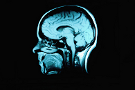 Atlanta Brain Injuries Attorney
